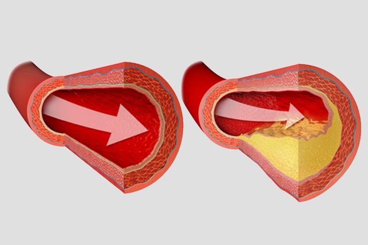 Ishemijska bolest srca