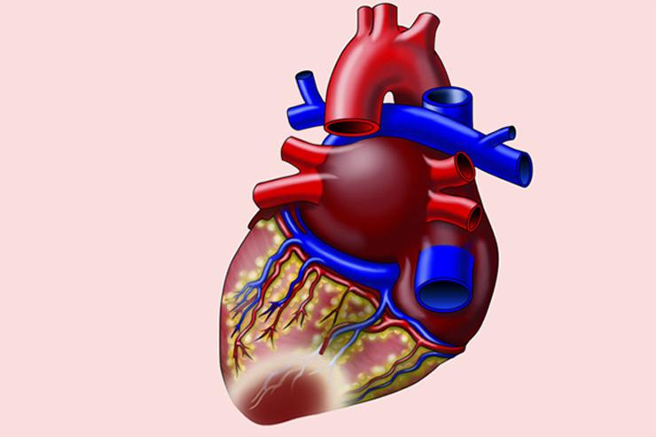 Infarkt miokarda (infarkt srca)